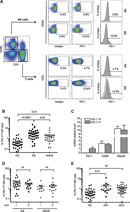 PD-1 is expressed on a fraction of CD56dim NK cells in KS patients.