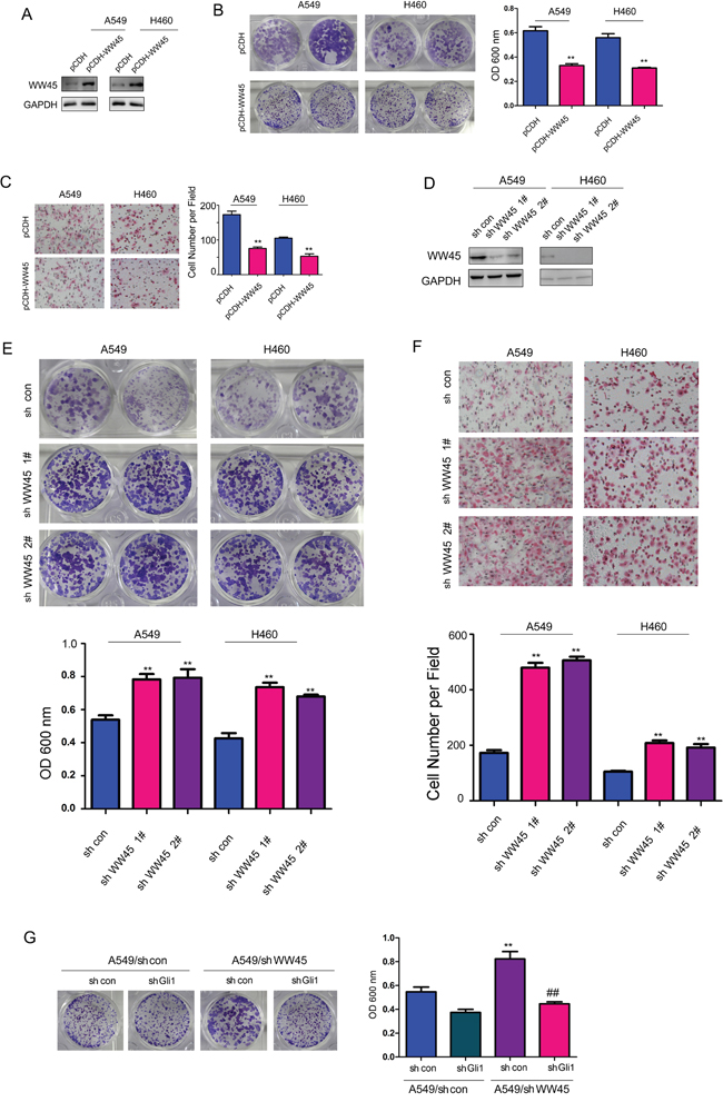 WW45 inhibited the growth and migration of the lung cancer cells through negatively regulating Hedgehog/Gli1 signaling.