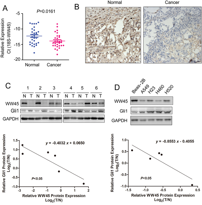 The mRNA and protein levels of WW45 were decreased in lung cancer.
