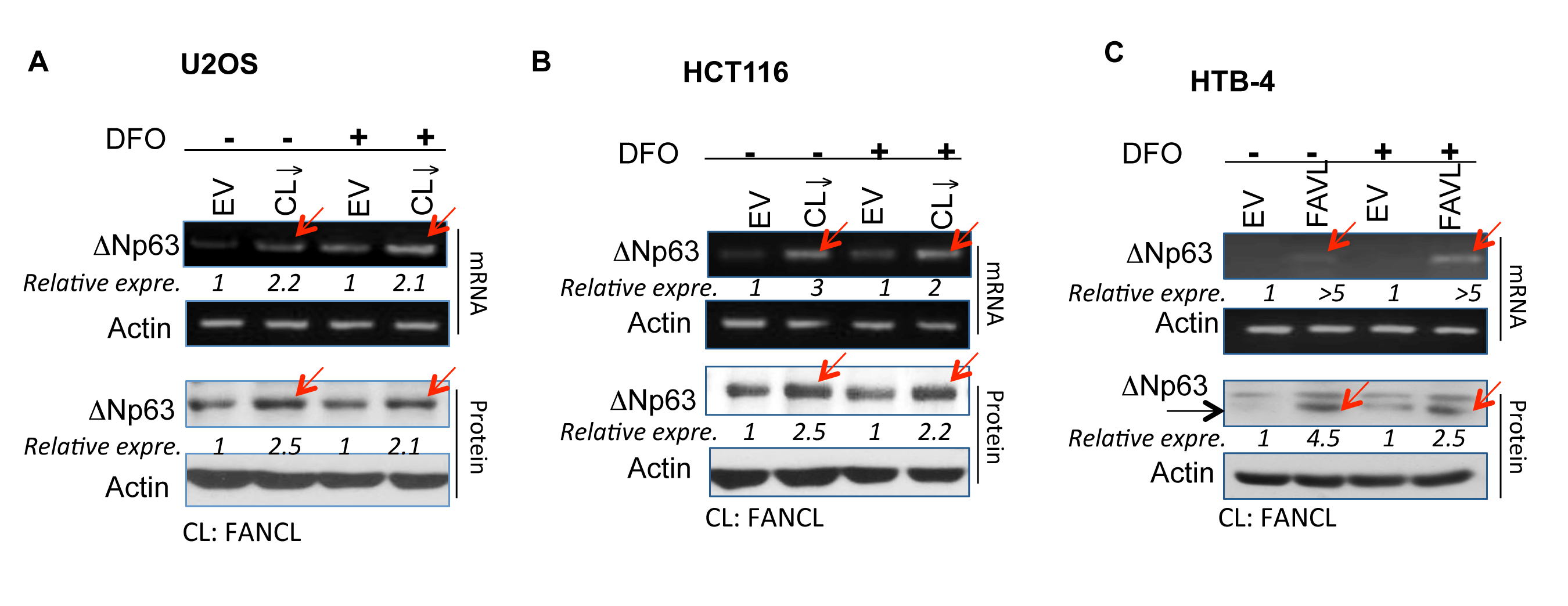 ∆Np63 expression is elevated in cancer cells carrying an inactivated FA pathway/ inactivated FANCD2 under normoxic and hypoxic conditions.