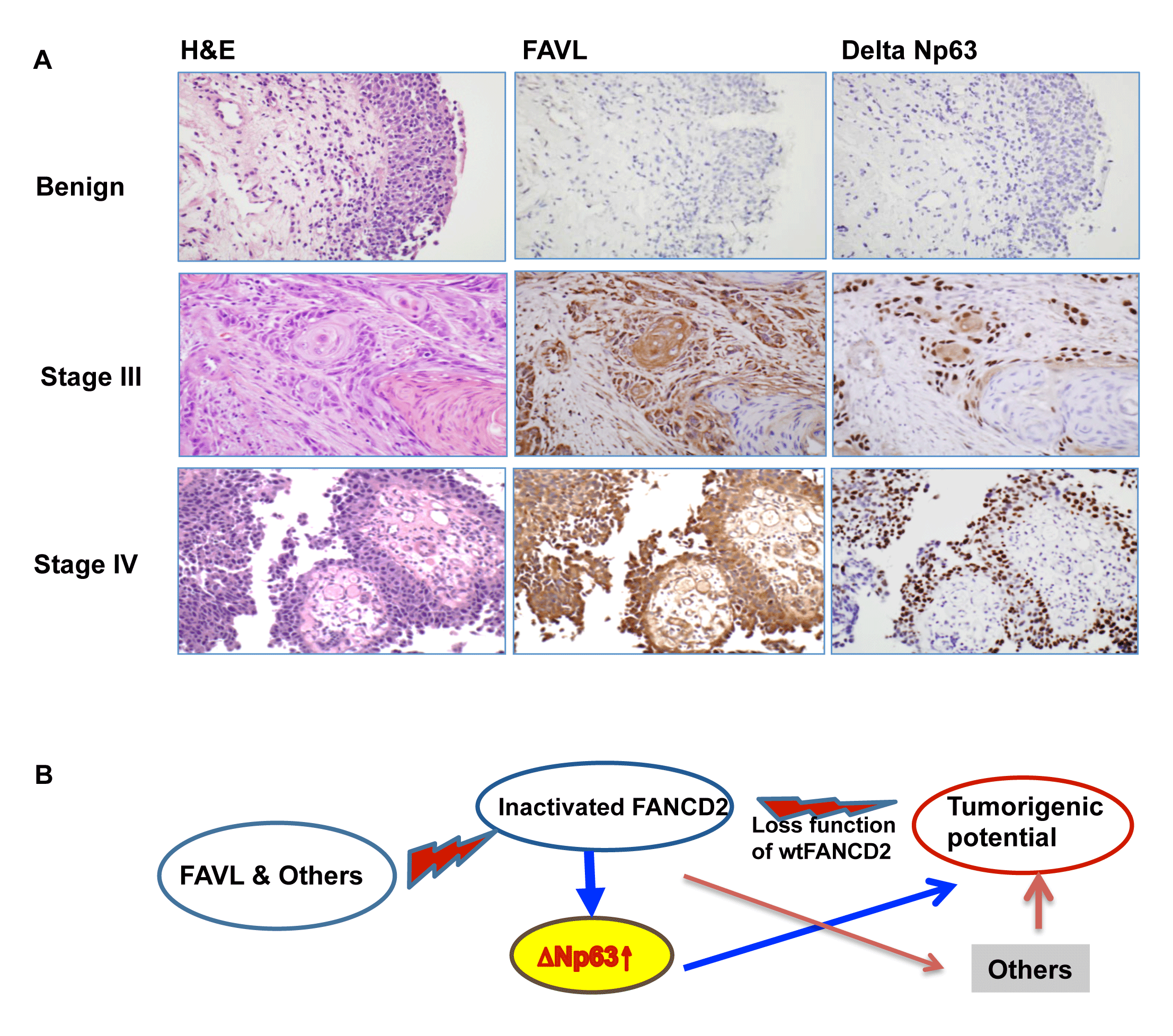 ∆Np63 can mediate tumorigenecity of an impaired FA pathway/an inactivated FANCD2.