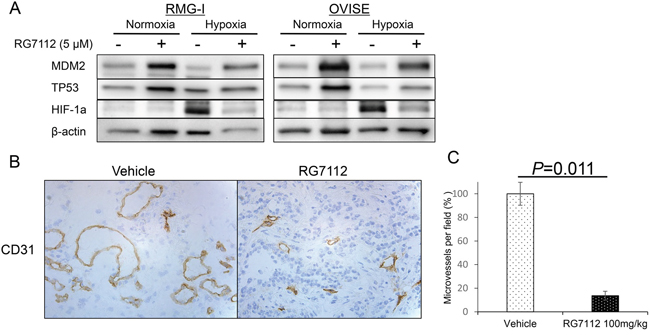 RG7112-induced suppression of HIF-1alpha during hypoxia and reduction of tumor vascularity.