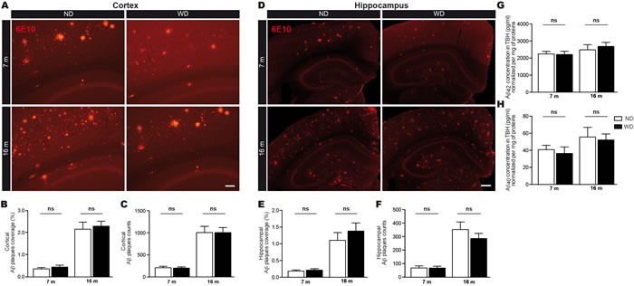 WD does not affect Aβ loads in brain parenchyma.