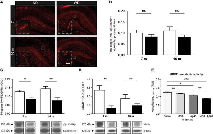 WD induces pericyte dysfunction without affecting their viability, which is associated to altered BBB functionality.