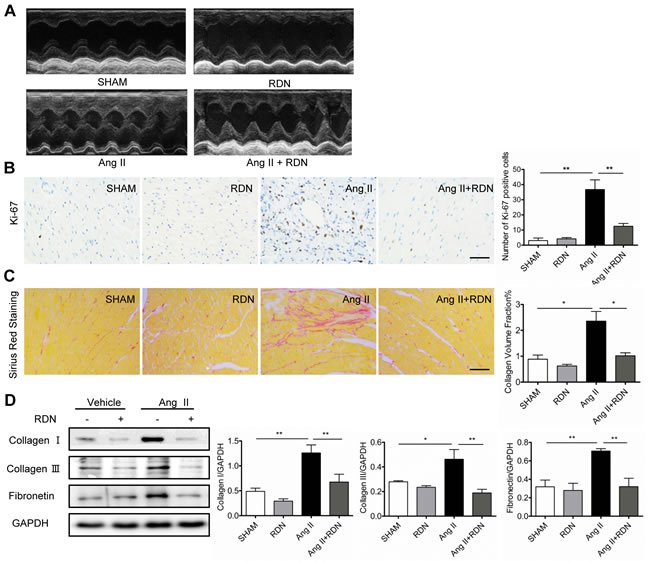 RDN prevents cardiac remodeling and fibrosis.
