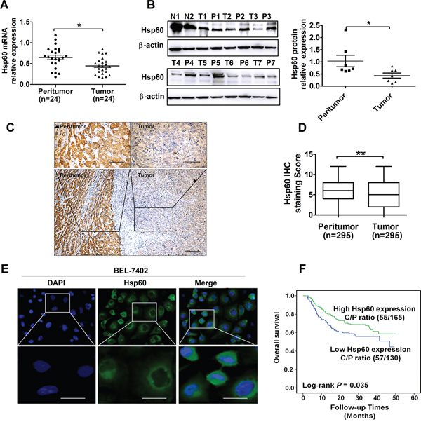 Hsp60 expression is down-regulated in HCC and predicts poor prognosis of patients.