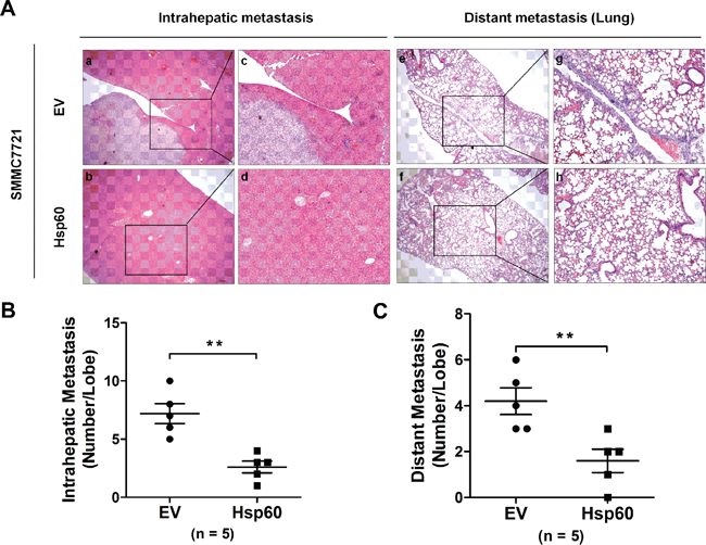 Hsp60 suppresses the metastatic potential of HCC cells in vivo.