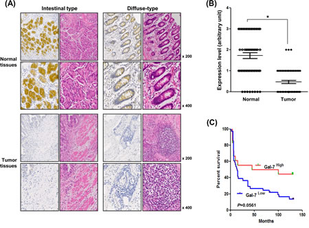 Expression levels of galectin-7 in malignant and normal tissues of 56 gastric cancer patients.