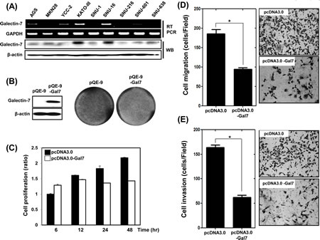 Over-expression of Galectin-7 suppressed proliferation, migration, and invasion of AGS gastric cancer cells.