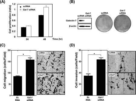 Ablation of Galectin-7 increased proliferation, migration, and invasion of KATO III gastric cancer cells.