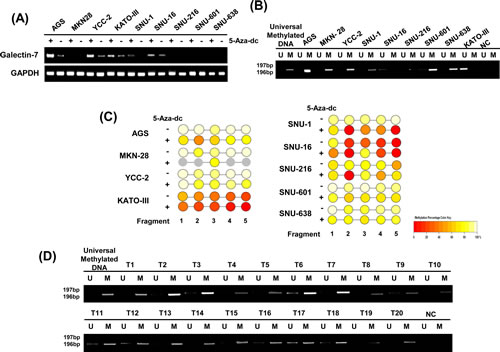 Galectin-7 was hypermethylated in gastric cancer cells and in malignant tissues of gastric cancer patients.