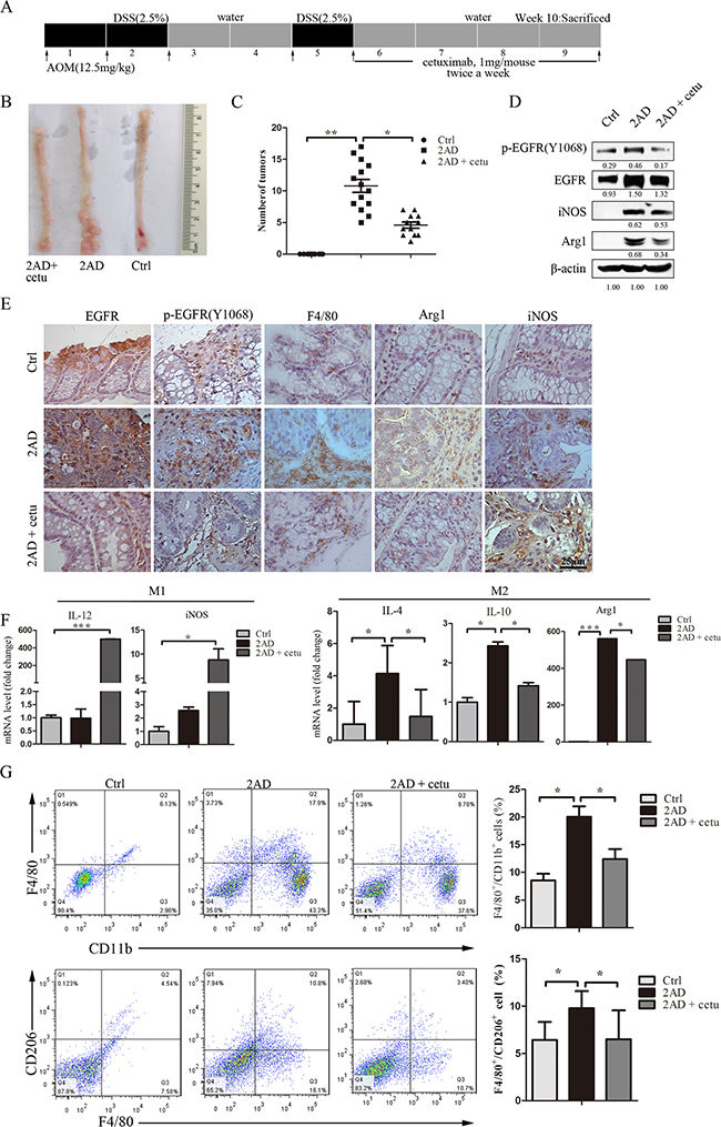 Cetuximab modulates macrophage polarization in an AOM/DSS mouse model.