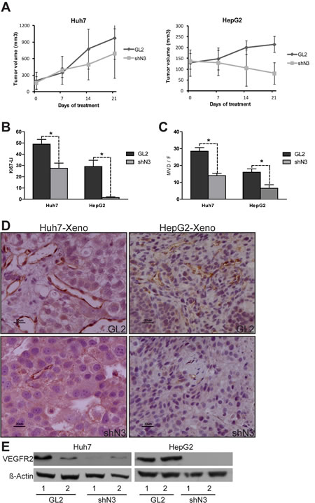 In vivo evidence of the role of Notch3 in sorafenib resistance.
