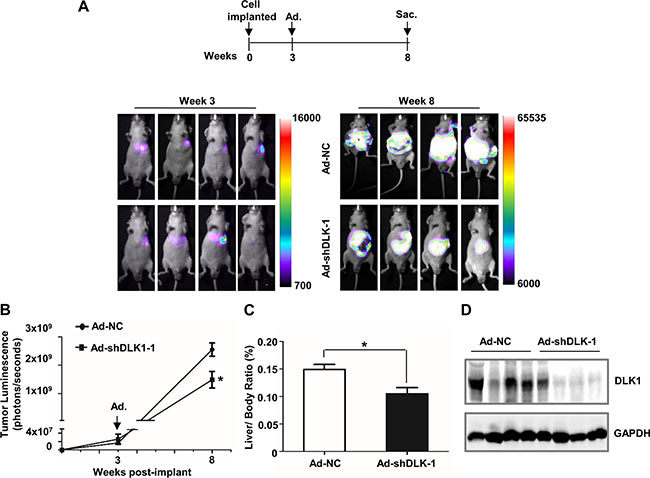 DLK1 knockdown mediated by adenovirus administration inhibits orthotopic xenograft tumor growth in athymic mice.