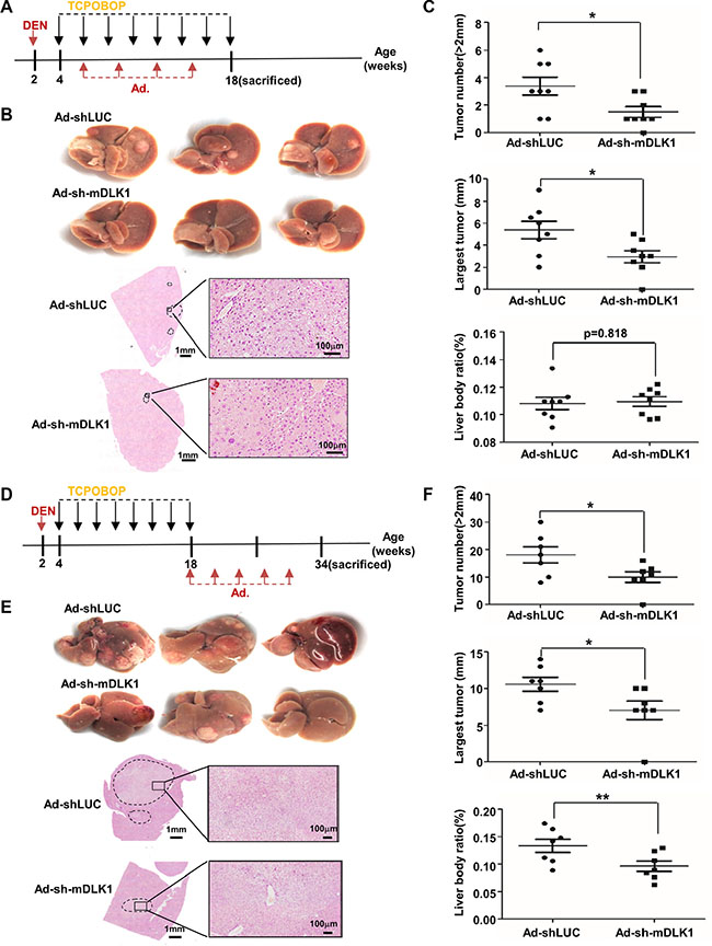 Adenovirus-mediated mouse Dlk1 knockdown attenuates HCC progression.