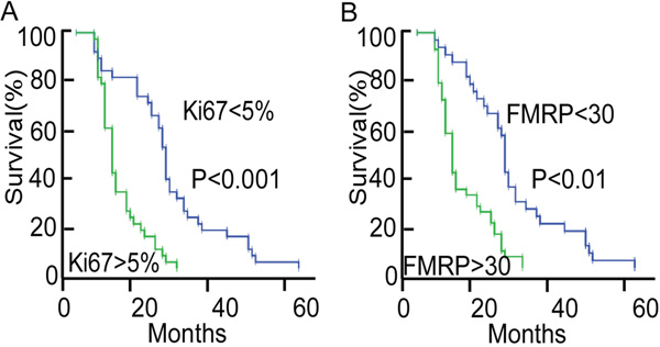 Analyses of overall survival in patients with astrocytoma according to the Ki67 or FMRP status.