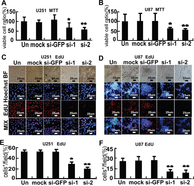 FMRP promotes proliferation of astrocytoma cell lines.