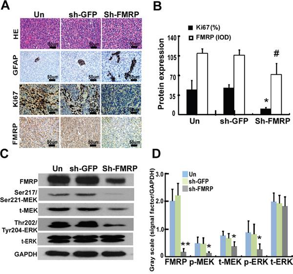 FMRP expression correlates to Ki67 expression and MEK/ERK signaling pathway in vivo.