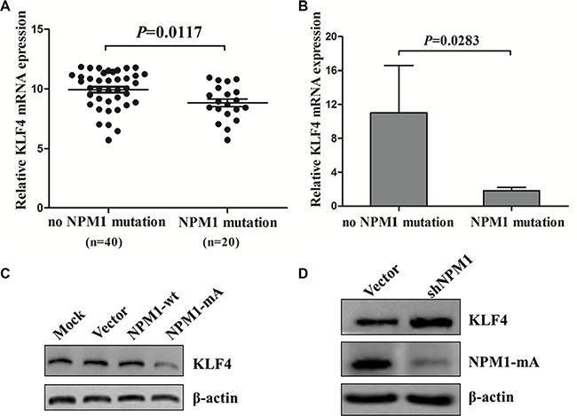 KLF4 is downregulated in NPM1-mutated AML.