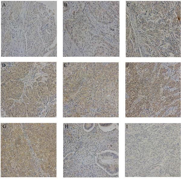 Representative IHC images of LYN in tissue microarrays.