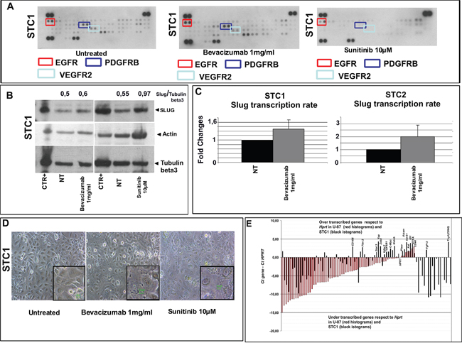Switching off VEGFR2 regulates the stemness traits of E-MpMs.