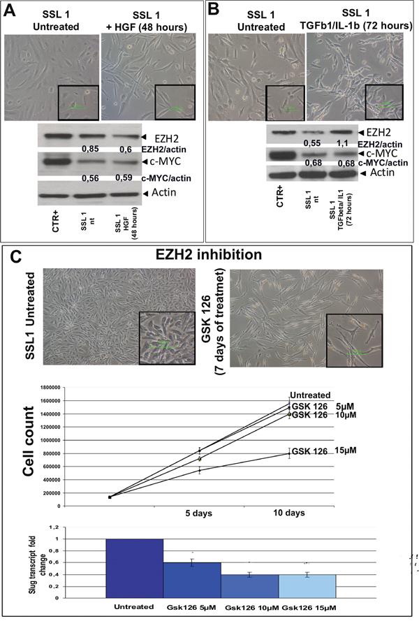 HGF, TGFβ1/IL1b and GSK 126 treatment.