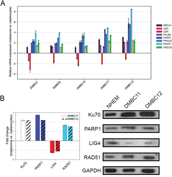 Expression profiles of DNA double-strand break repair genes in melanoma cells compared to melanocytes.