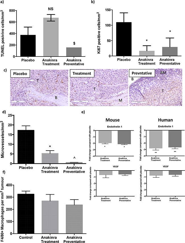 Effects of anakinra on viability of MDA-MB-231-IV tumours in bone.