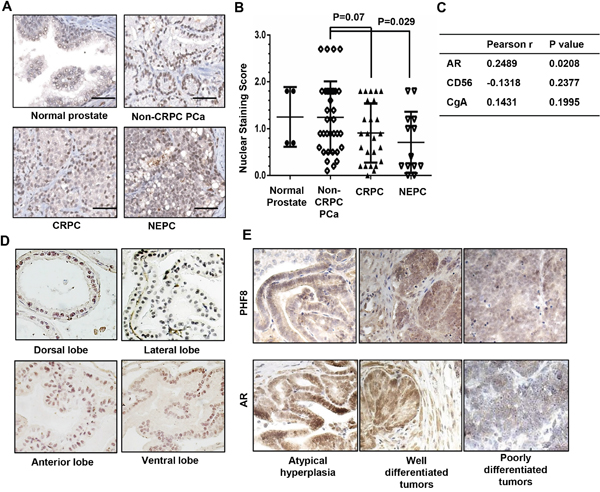 PHF8 is co-expressed with AR in clinical PCa samples, in normal mouse prostate, and in prostate tumors from TRAMP mice.