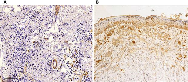 Representative images of RAB22A immunostaining.