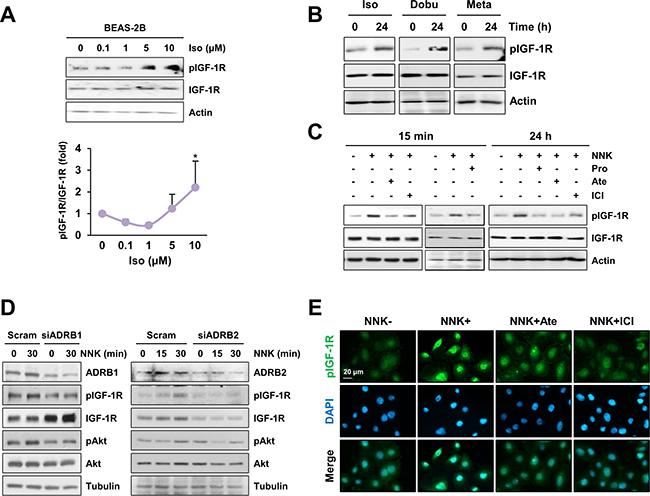 β-AR is involved in NNK-mediated IGF-1R phosphorylation.