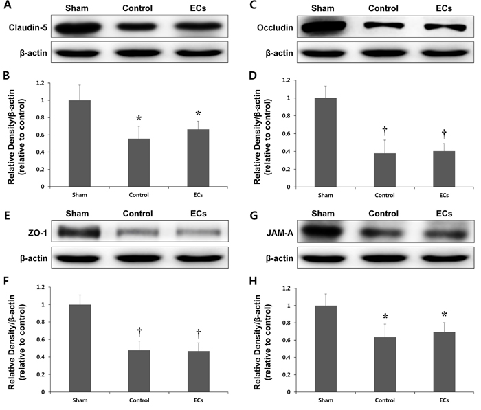 Expression of tight junction (TJ) proteins in a rat model of MCAO.