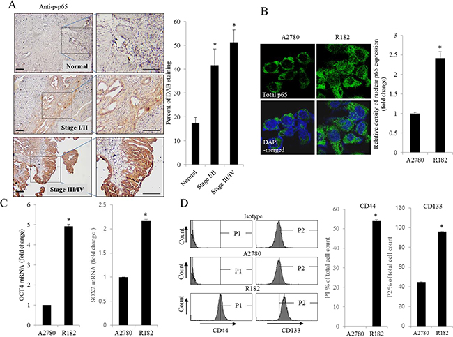 Histological and molecular phenotype of human ovarian cancer.