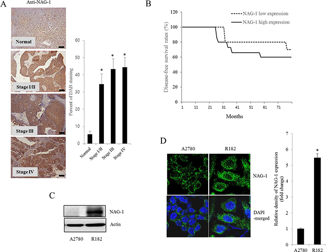 NAG-1 expression in human ovarian cancer and type I EOC cells.