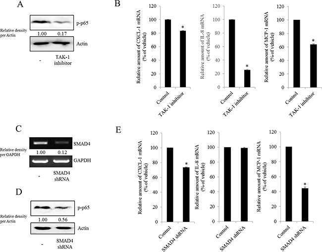 Involvement of TAK-1 and SMAD4 expression in NF-κB-mediated inflammatory responses in type I EOC cells.