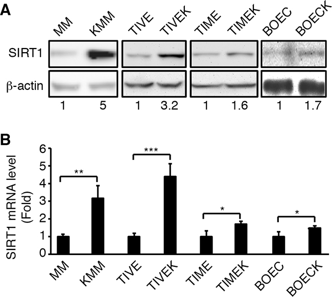Upregulation of SIRT1 expression in different types of cells latently infected by KSHV.
