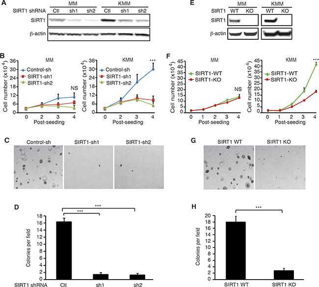 SIRT1 knockdown or knockout suppresses cell proliferation and colony formation in soft agar of KSHV-transformed cells.