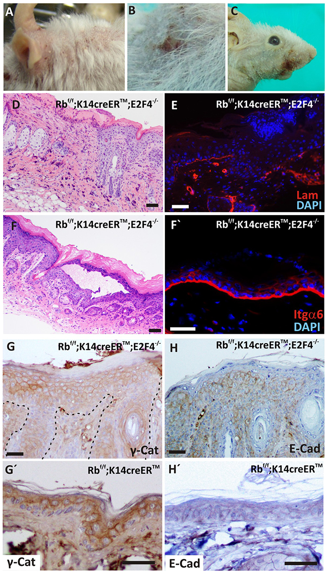 Spontaneous wounds and epidermal fragility in RbF/F; K14creERTM; E2F4-/- mice.
