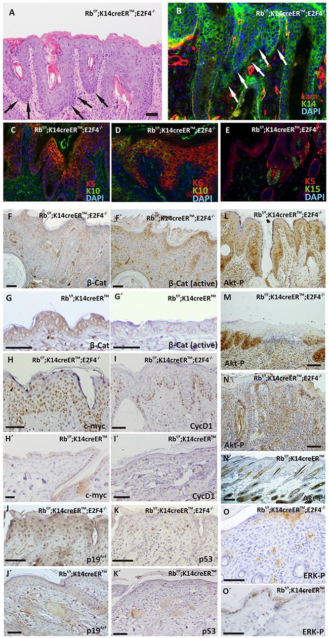 Carcinoma in situ development in RbF/F; K14creERTM;E2F4-/- mice.