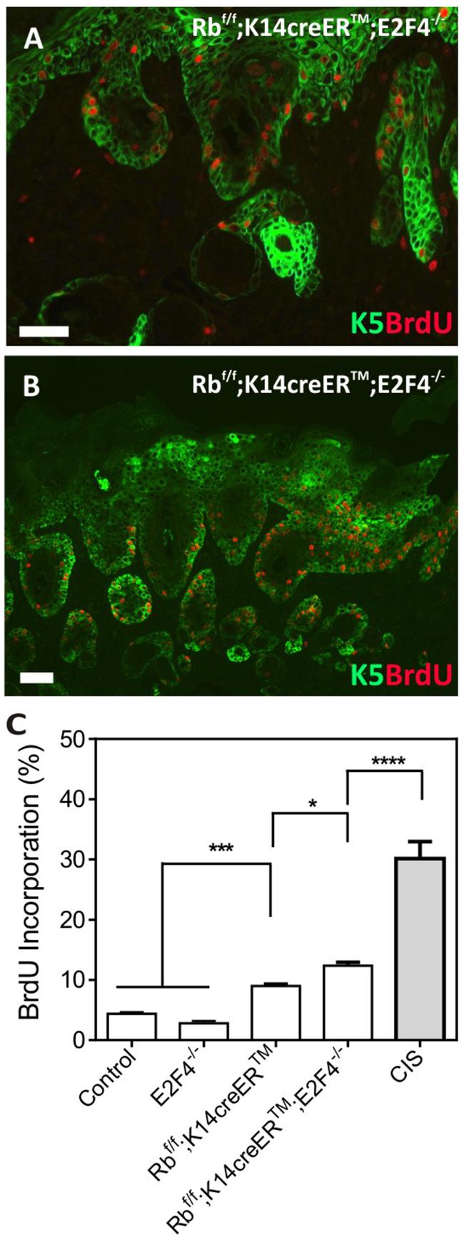 Epidermal Proliferation in RbF/F;K14creERTM;E2F4-/- mice.