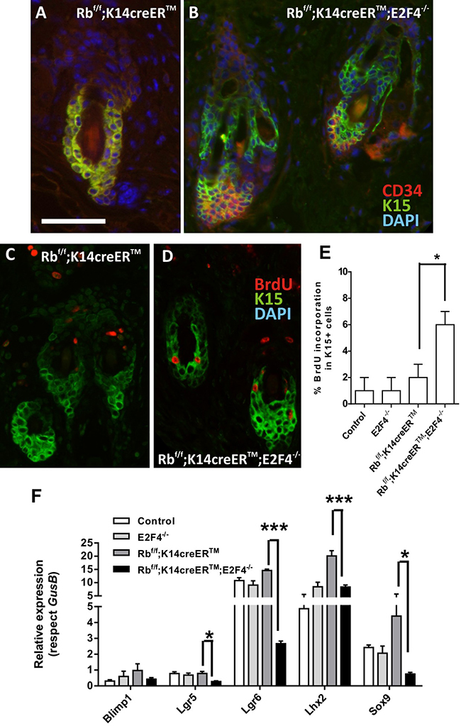 Epidermal stem cell niche is altered in RbF/F;K14creERTM;E2F4-/- mice.
