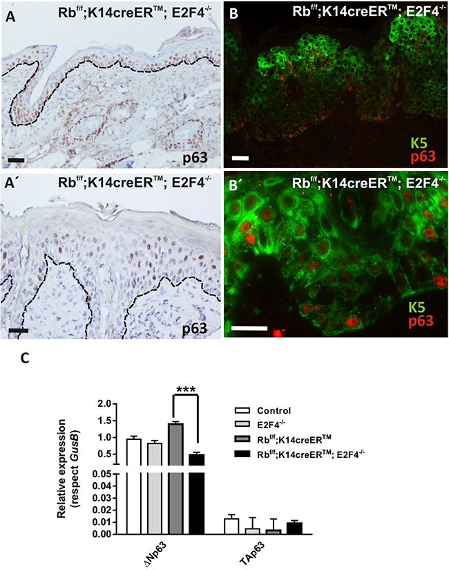 p63 shows an aberrant expression pattern in Rbf/f;K14creERTM;E2F4-/- mouse epidermis.