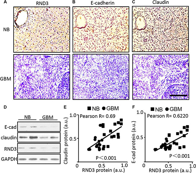 Significant downregulation of E-cadherin, claudin and RND3 protein levels were detected in human GBM tissues.