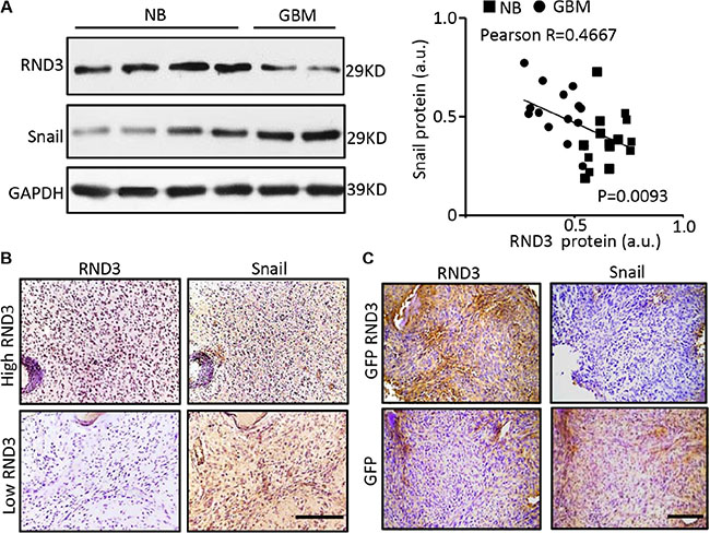 RND3 expression levels were inversely correlated with Snail1 expression levels in human and mouse GBM tissues.