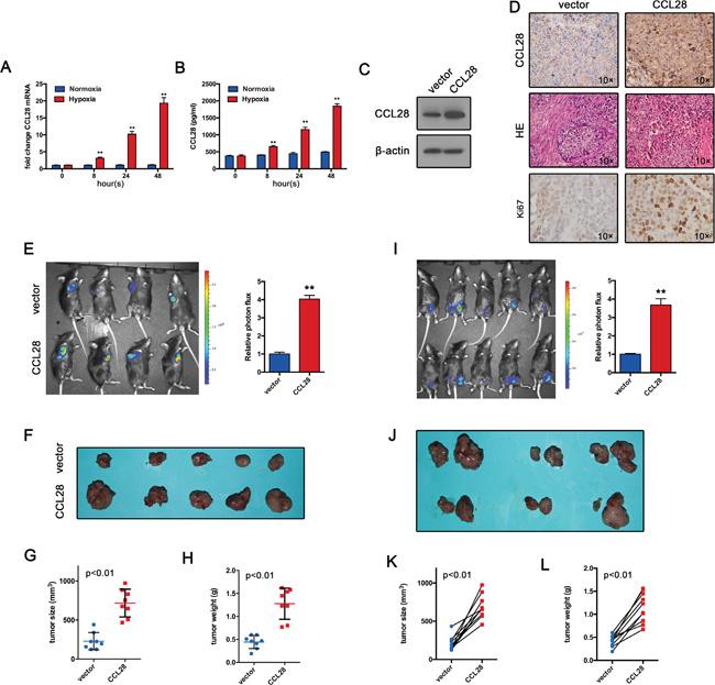 CCL28 promotes tumor formation in vivo.