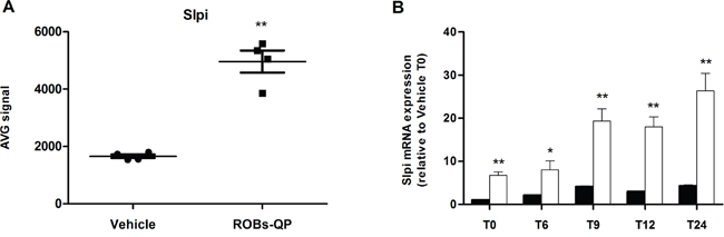 Quercetin induces Slpi expression in LPS-activated BMDCs.
