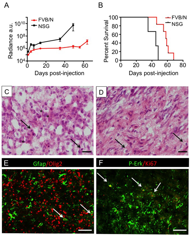 2341luc syngeneic grafts showed characteristics of high-grade glioma.