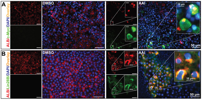 Premalignant alteration events triggered by AAI exposure in the liver-like tissue at the differentiation endpoint.