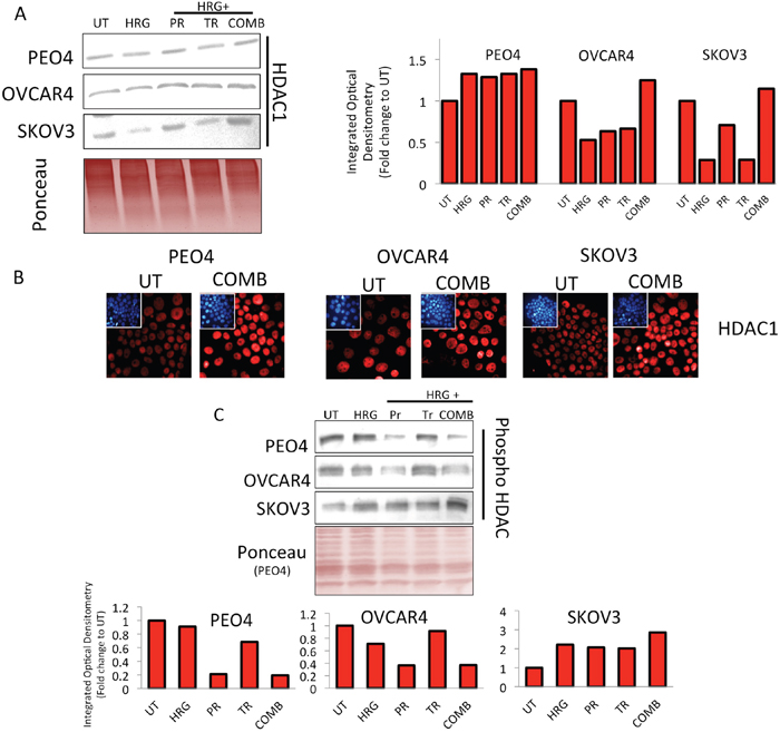 Treatment with HER2 targeting immunotherapeutic agents causes induction of HDAC1 expression and repression in phospho-HDAC levels.