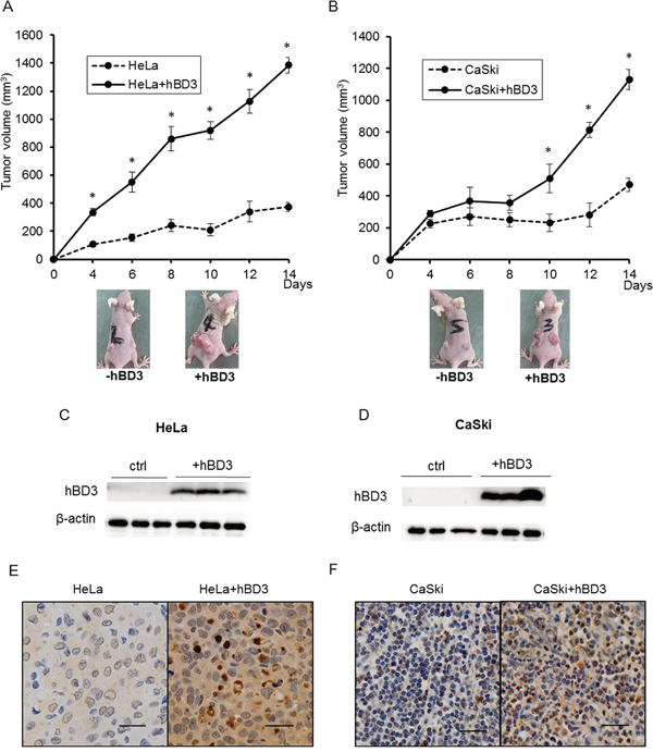 hBD3 overexpression promotes the growth of cervical cancer cells tumor xenograft in vivo.